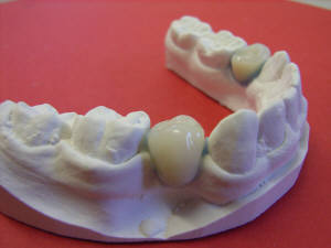 Essix Ace Retainer with Teeth